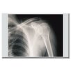 Buyenlarge Shoulder Wrapped Photographic Print on Canvas
